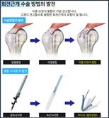 회전근개 파열 수술, 견고한 봉합이 중요