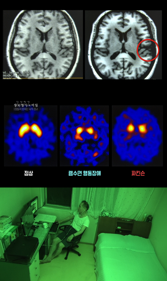 '생로병사의 비밀' 수면 부족, 치매·암까지 유발?…'잠들지 못하는 뇌의 경고'