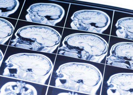 뇌가 만성 통증을 조절한다는 원리규명