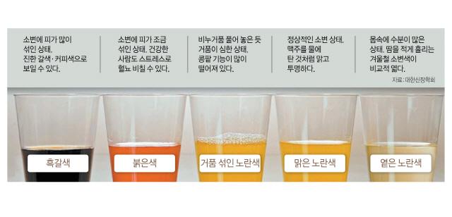 [아하 건강상식] 소변 색으로 셀프 건강체크…붉은색은 방광염·콜라색은 사구체신염 의심해보세요