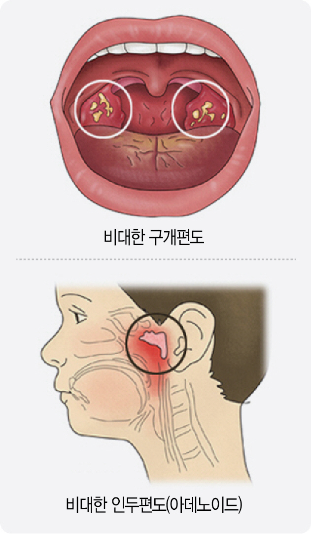 [아하! 건강상식]코골이 원인 연령층별 달라...어린이, 비대 편도가 숨길 막아