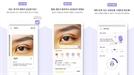 회복 중 불편 증상 문의 1위 '눈성형', 성형 후 회복 분석 앱으로 불안감 해소