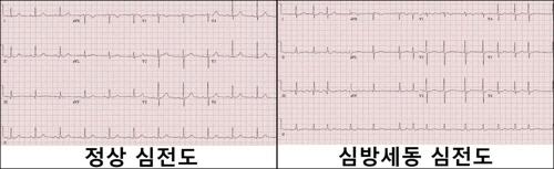 '심방세동 환자, 최고혈압 129 이하여야 합병증 예방'