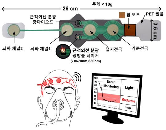 수술 환자 마취심도 '무선'으로 측정하는 기기 개발