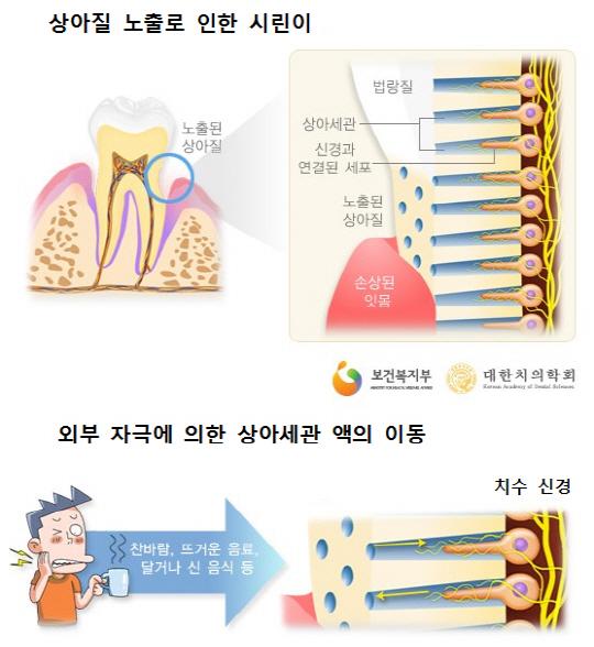 시린 치아 치료 길 열렸다