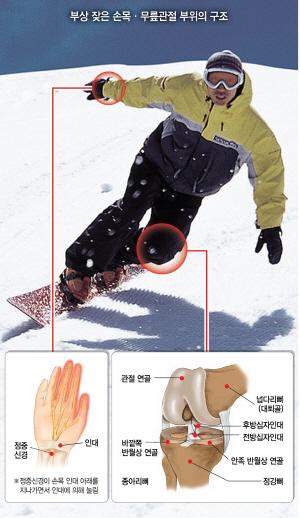 스키장서 호기 부리다 '꽈당'…무릎 인대 파열 '악'