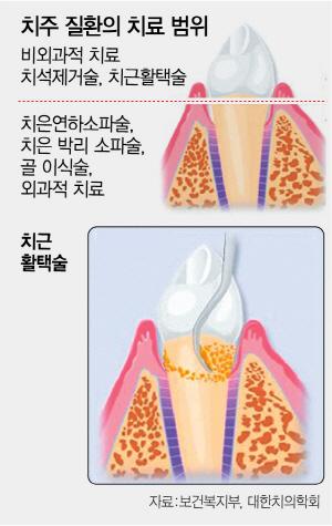 치아뿌리 염증 잡으니 당뇨병 환자 혈당 '뚝'