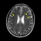 """""""뇌졸중 초기 인지검사 통해 회복 가능성 측정 가능해"""""""