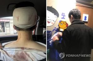이수역 폭행에 '메갈' 관심↑…무슨 뜻?