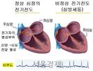 초미세먼지, 심방세동 발병 영향력 미세먼지의 5.3배