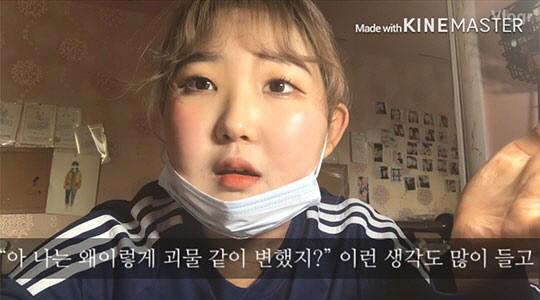 """[SE★이슈] 최진실 딸 최준희, '난치' 루프스병 투병 중…""""괴물 같이 변해"""" 고백"""