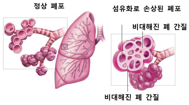 [조양호 한진회장 별세] 사망원인, 폐 굳는 '폐섬유증'에 무게