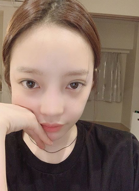 [전문] 안검하수 구하라 심경토로…'수술하는 덴 이유가 있다'