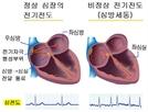 심장 안팎서 부정맥 유발부위 치료…효과 월등