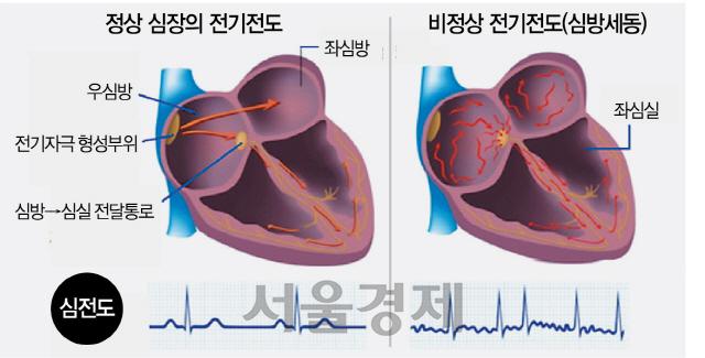 심장 안팎서 부정맥 치료, 효과 뛰어나