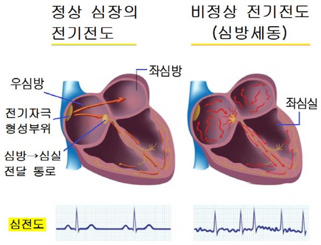 심방세동 치료하면 뇌기능 향상…기억·어휘력 좋아져
