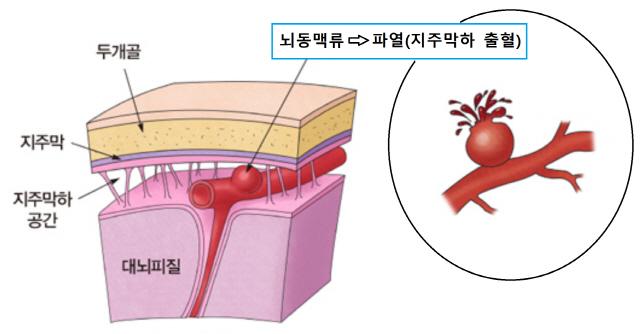 '40억 투자유치…뇌출혈 신약후보물질 해외 전임상'