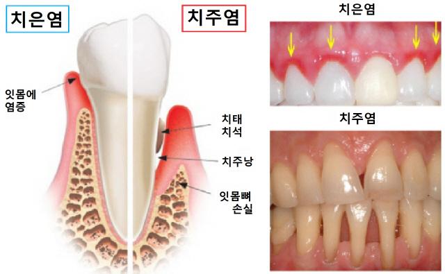 치주염 있으면 구강암 위험 3.5~4.1배↑