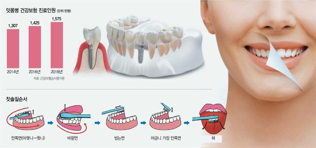 재발 쉬운 잇몸병, 치실로 관리하세요