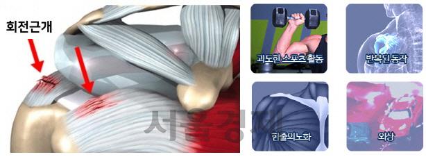 박근혜 전 대통령, 회전근개 수술 받으러 서울성모병원 입원