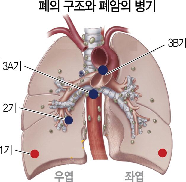 유한양행 신약, 기존 약 안 듣는 EGFR 변이 폐암 60%에 들어