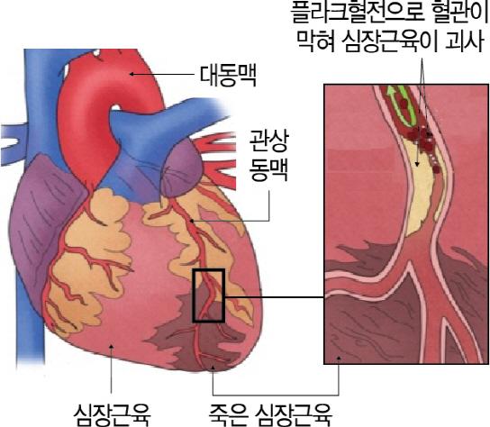 팔·어깨통증도 심장마비 징후인데...46% '잘 몰라요'