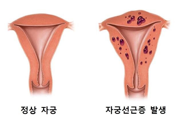 난임여성 10명중 1명 갑상선·부인과 질환 앓아
