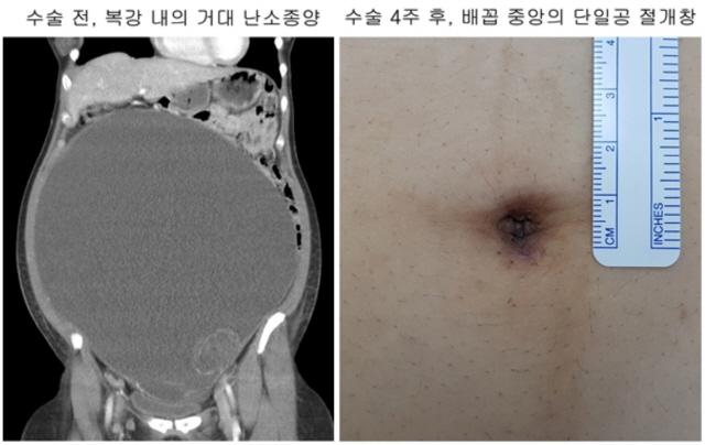 전이 없이 거대 난소종양 절제술 개발