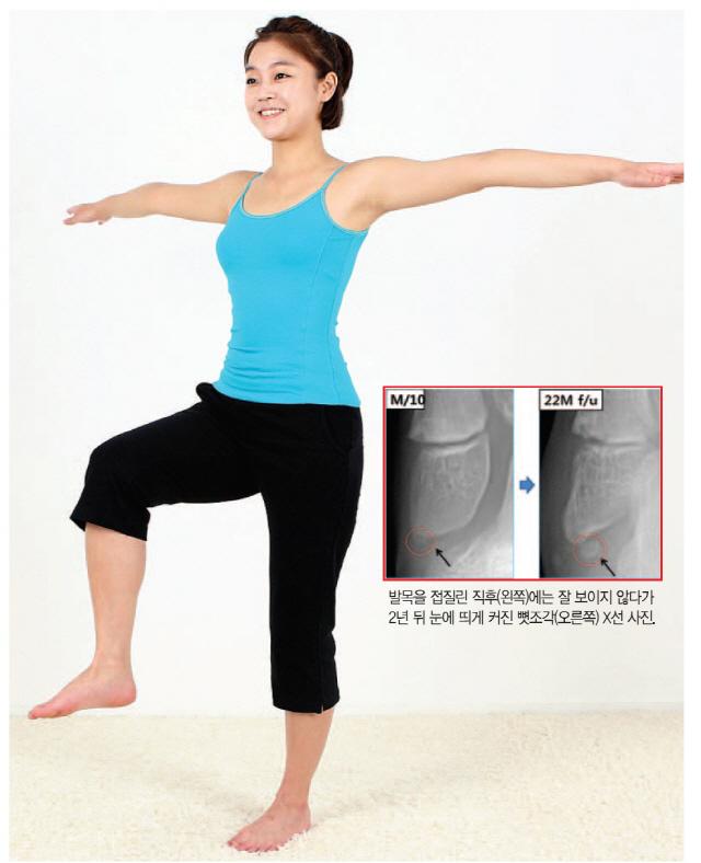 발목 자주 삐끗하면 불안정증·관절염 빨리 온다