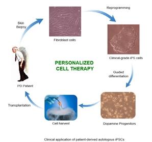 파킨슨병 임상치료 성공...'만능줄기세포'로 해냈다