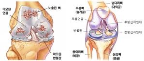 운동후 무릎통증 3~4주 이상 지속땐 연골·인대손상 의심을