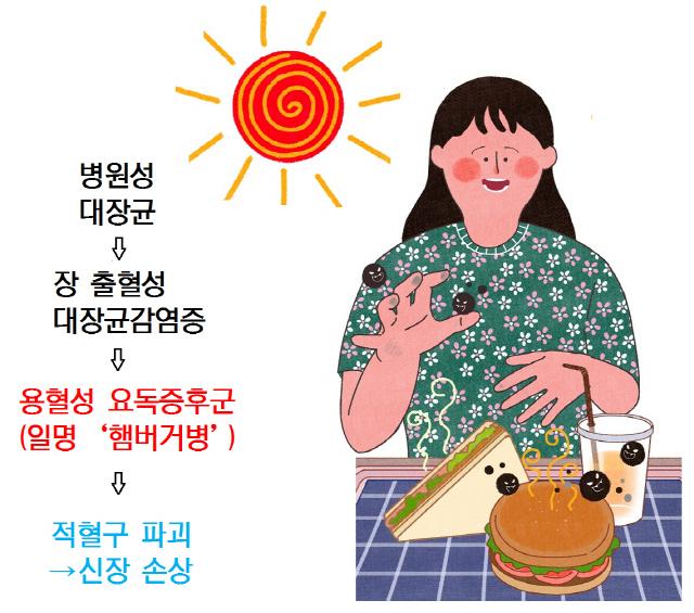 5~7일간 설사·복통·혈변…출혈성 대장균감염증 '주의보'