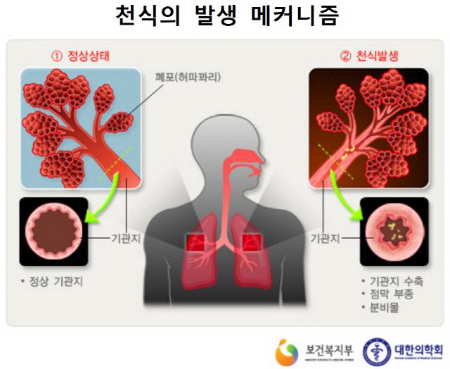 [환절기 건강관리] 천식 걸린 후 심한 운동, 발작 빈도만 높여