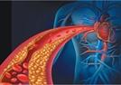 돌연사 부르는 심근경색·협심증…짠 음식·비만은 毒