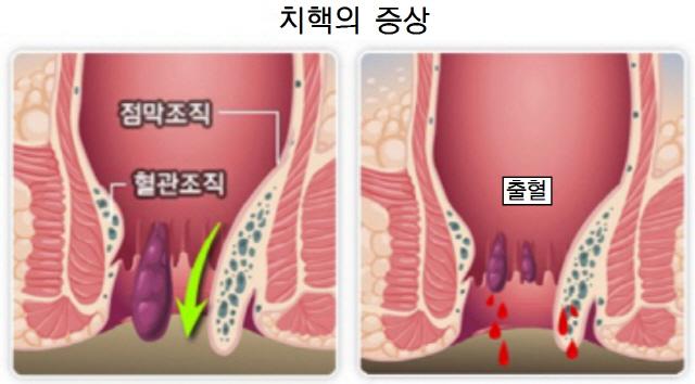 항문 출혈은 무조건 치질?...대장암·크론병일 수도
