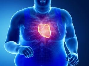 허혈성 심장질환 환자 5년간 17.2% 증가
