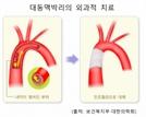 가슴 찌르는 통증, 대동맥 박리 의심을…고혈압 있다면 더 주의해야